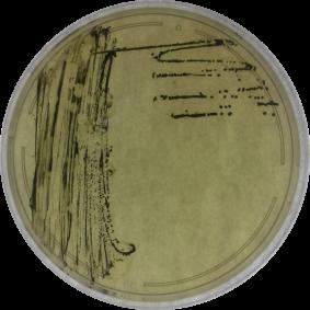 Clostridium perfringens plate